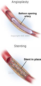 angioplasty_stenting