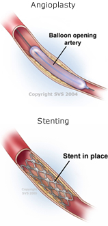 Angioplasty and Stenting