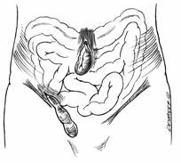 Illustration of intestines protruding through a hernia.