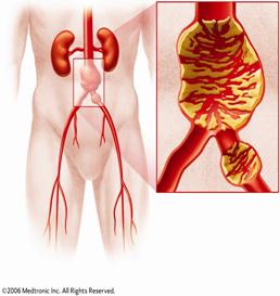 Vascular Aorta