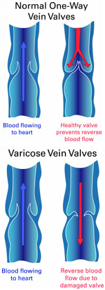Illustration showing healthy vein valves as compared to varicose vein valves
